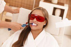 Descrierea metodelor de albire a smalțului dinților