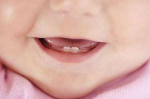 Dentitia dintilor: sincronizare si simptome