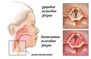 Semne de stenoză a laringelui