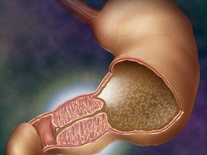 Cauzele stenozelor coloanei vertebrale