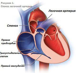 Stenoza arterelor pulmonare