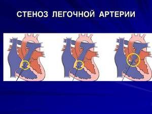 Stenoza arterei pulmonare la făt și nou-născut