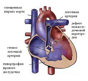 Aorta și artera pulmonară