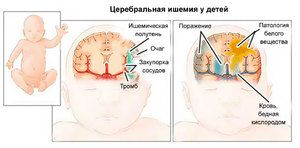 Cum se trateaza ischemia cerebrala