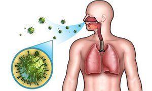 Simptome ale pneumoniei streptococice