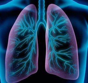 Diagnosticul cu raze X a pneumoniei