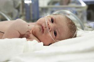 Stridor congenital la nou-născuți - cum se tratează