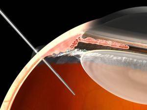 Cum sunt injectate medicamentele în ochi