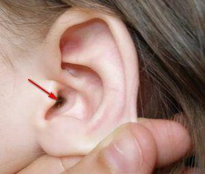 O crustă în ureche și o modalitate de a scăpa de ea