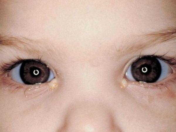 Este la modă să se utilizeze la nou-născuți cu ochi furios