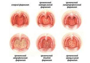 Forme de faringită