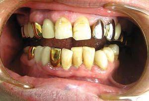 Galvanoza este o boală caracterizată prin apariția de curenți electrici datorită prezenței de proteze metalice în cavitatea bucală