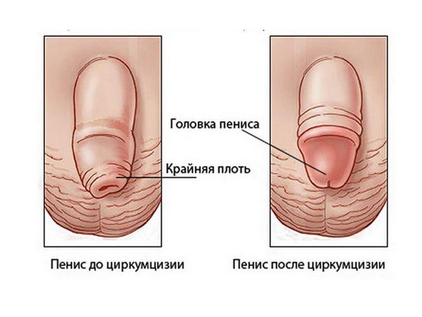 Prevenirea fimozelor la copii și adulți