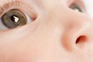 Cauze de supurație a ochilor
