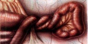 Cauzele unei întoarceri intestinale la copii