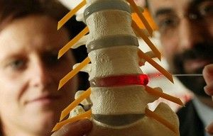 Cauzele unei hernie spinării