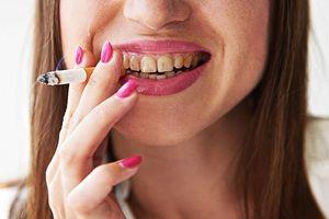 Cauzele formării plăcii dentare