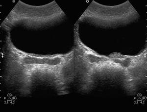 Cum arată vezica urinară în imaginea cu ultrasunete