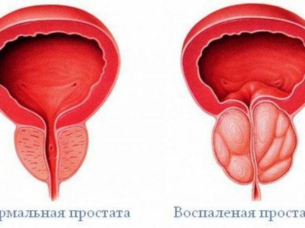 Prostatita - ce este și cum este tratată