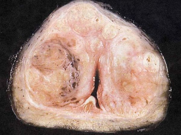 Adenomul de prostată este o boală gravă