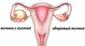 Ovarul ovarian