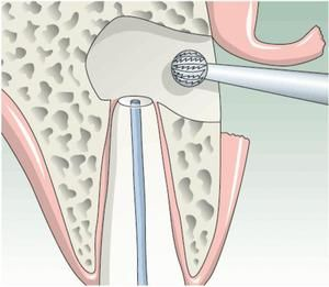 cistectomia