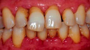 Boala parodontitei