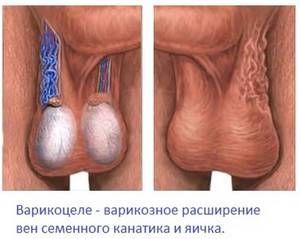Ce este venele varicoase ale testiculelor și cum se manifestă acestea