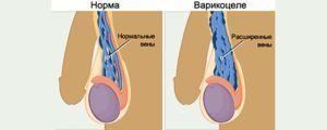 De ce există o boală varicocelă