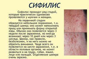 Sănătatea bărbaților - dezvoltarea sifilisului, stadiul, tratamentul.