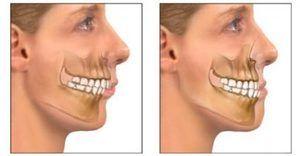Cum se identifică patologia maxilarului superior