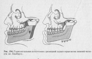 Upper maxilar