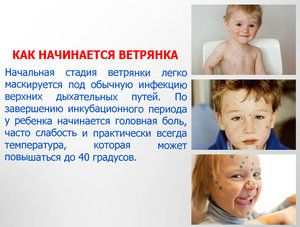 Caracteristicile tratamentului de varicela