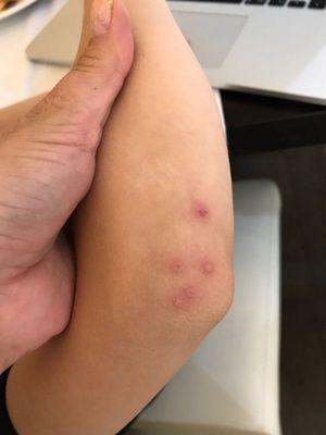 Care sunt simptomele virusului Korsak?
