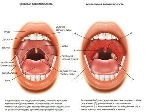 Tratamentul amigdalelor palatine