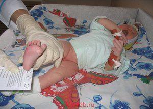 Cum infecteaza nou-nascutii