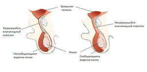 Dropsy of testicles