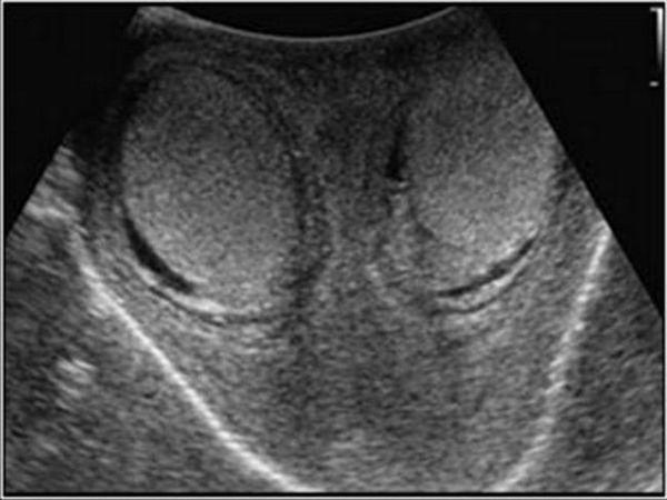 Simptomele testiculelor lasate
