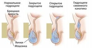 Cauzele posibile ale bolii