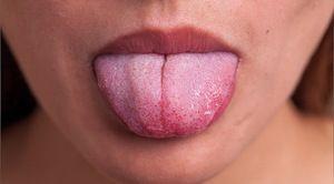 Inflamația amigdalelor linguale este un fenomen rar