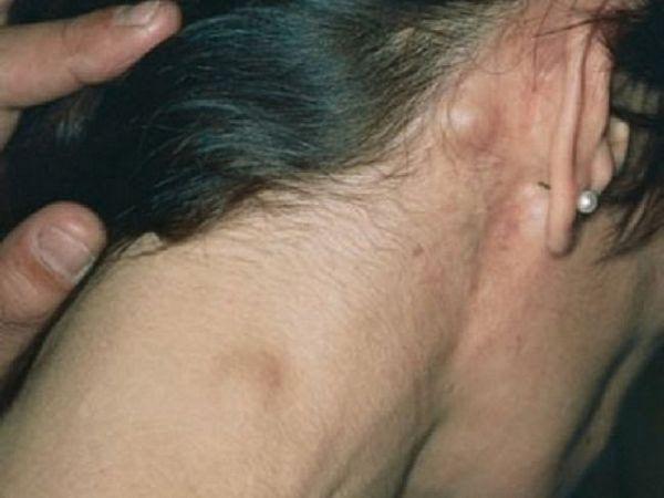 Descrierea semnelor externe ale inflamației ganglionilor limfatici din spatele urechilor