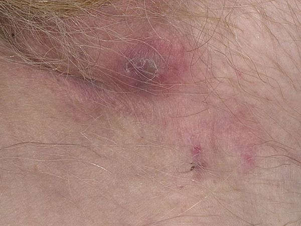 Principalele simptome ale bolii sunt hidrodenita