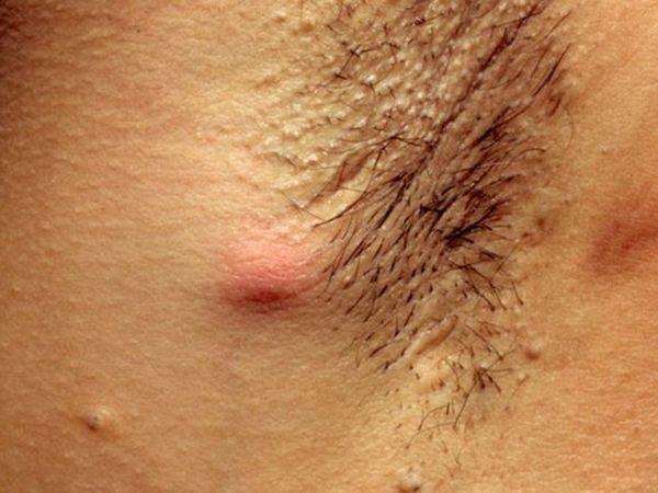 Cum sa elimini inflamatia glandelor sudoripare