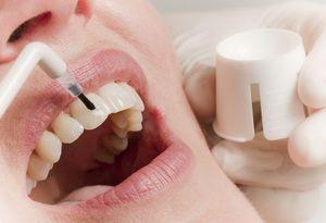 Caracteristicile restaurării smalțului dinților