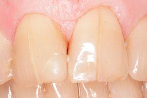 Indicații pentru restaurarea smalțului dinților