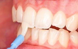Descrierea metodei de remineralizare a dinților pentru restaurarea smalțului