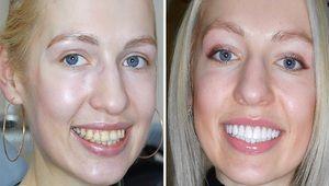 Modalități de a restabili deteriorarea puternică a smalțului dinților