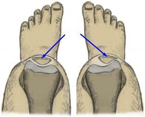 Dispsia articulară a genunchiului - metode de tratament