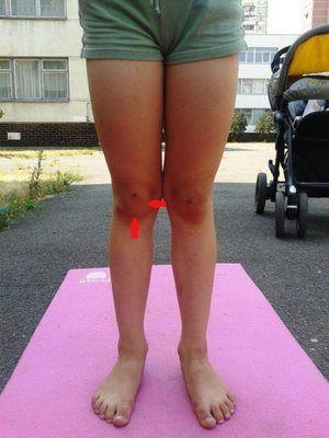 Displazia articulațiilor - cum arată genunchii