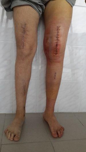 Deformitatea congenitală a articulației genunchiului - fotografie